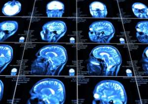 New technology could deliver drugs to brain injuries- India Tv